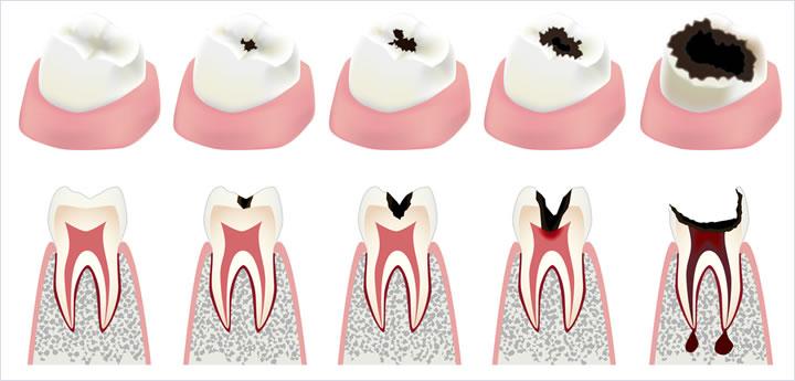 虫歯の進行と治療法