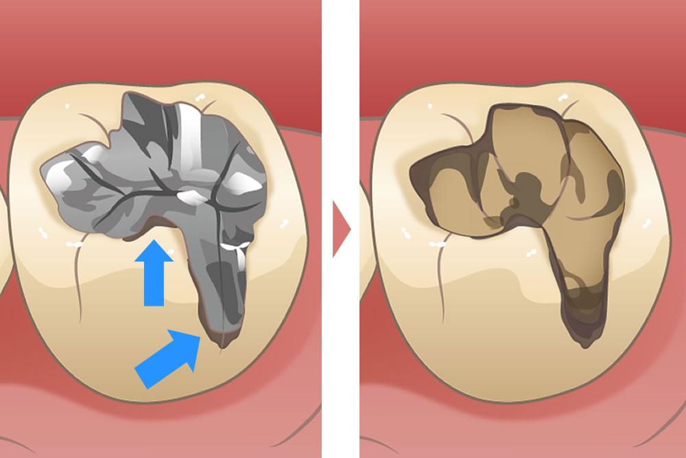 5年で再発する虫歯