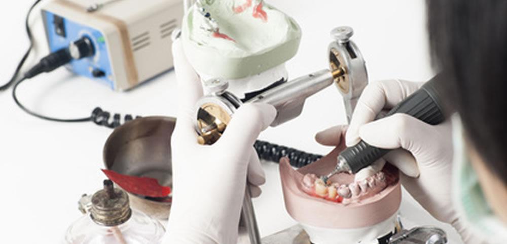 歯科技工士との提携